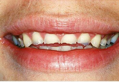 Family Dental of Fairfax - Example of tooth enamel wear