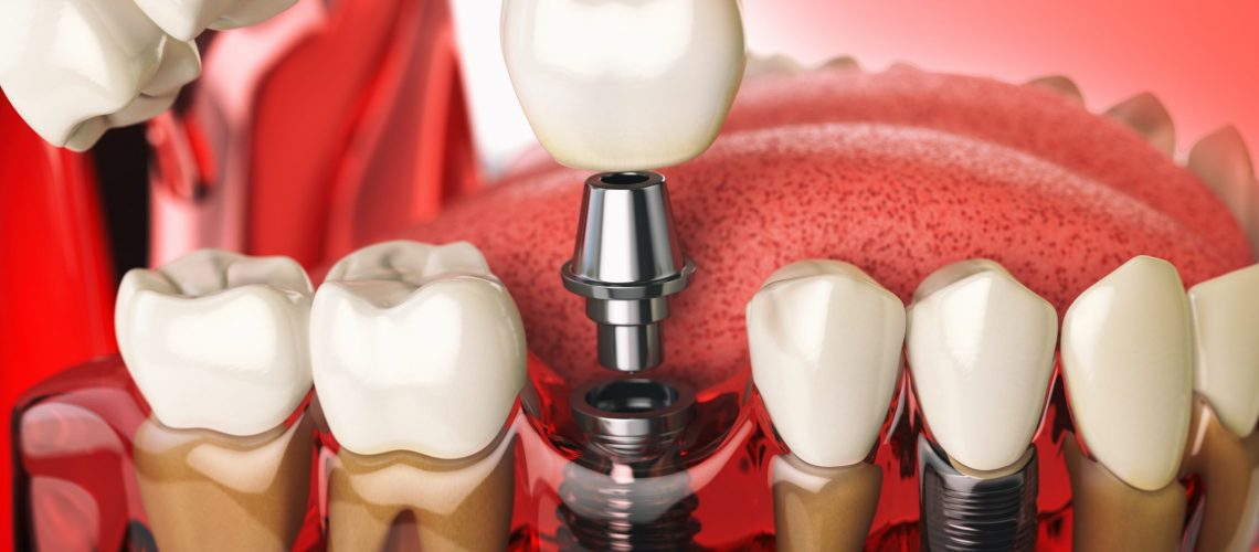 tooth-implant-in-the-model-human-teeth-gums-and-PQ9Z6GD-min